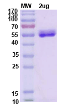 Recombinant Human IL6 protein ,C- Fc tag图片1