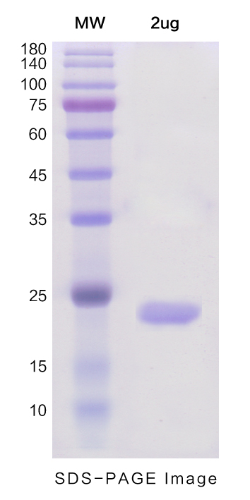 Recombinant Human IL1A protein ,N- His Tag图片1