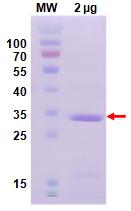重组抗体表达3
